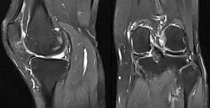 Meniscus Root Injury