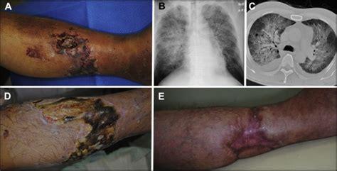 pyoderma gangrenosum   acute respiratory