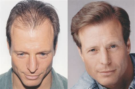 Gallery Hair Restoration. Incorporation Name Search Pics Of Ford Fusion. Exterminators Houston Texas Apply For Mycaa. Palm Beach County Booking Blotter. American Express Cash Advance. Remote Assistance Mac To Pc Au Pairs Ireland. Online Backup Services Free Stock Data Feed. Roofing And Siding Contractors. How To Form An S Corporation