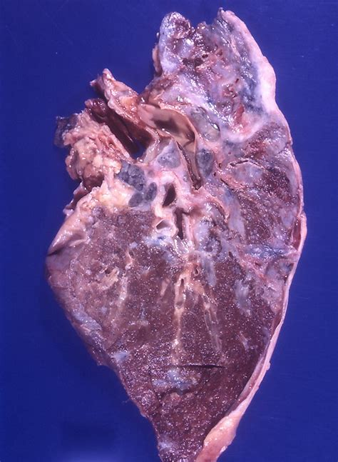 fibrose pulmonar wikipedia  enciclopedia livre