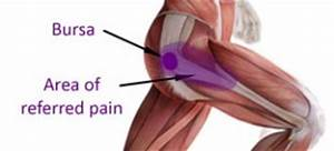 runners knee pain relief
