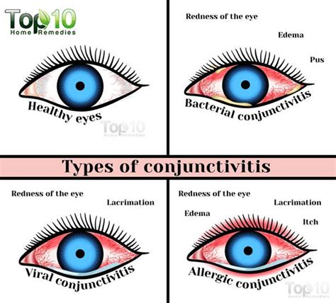 home remedies for eye infection in children