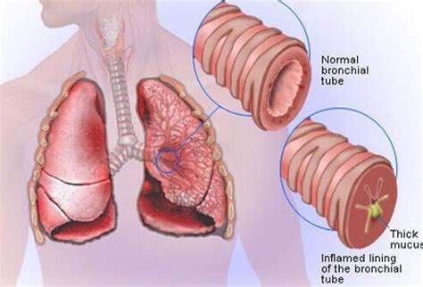 illustration picture  lung diseases  problems