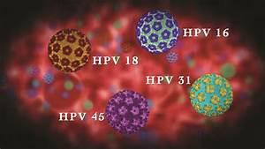 Днк вируса папилломы hpv 16 лечение