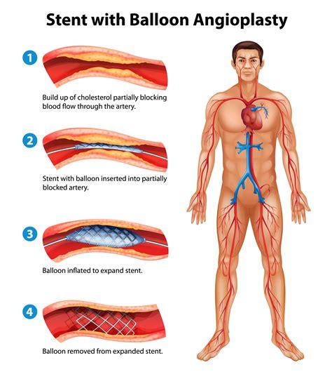 Common Heart Procedures Explained Coronary Angiogram And