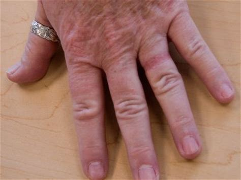 wedding ring rash causes symptoms signs and treatment by