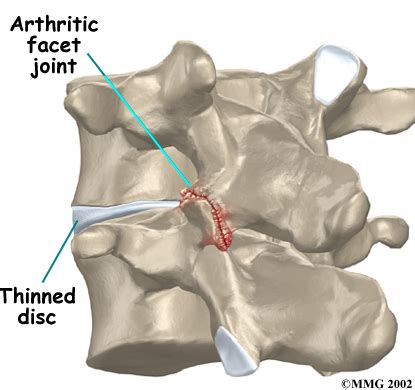 Solutions For Facet Joint Problems  Desert Interventional. Affiliate Network Marketing Anthem Hsa Login. Comcast Corporate Phone Number. Technical College Charleston Sc. Household Contents Insurance. Jeep Dealership Orange County. Mba University Of California Bsn San Diego. Interest Rates On 15 Year Fixed Mortgage. Gastric Bypass Long Term Side Effects