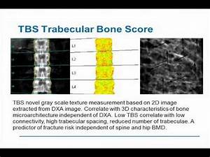 Osteoporosis and Advances in Metabolic Bone Disease - Ep ...