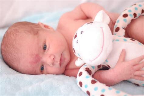 mon b 233 b 233 a une tache de naissance neufmois fr