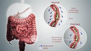 Diarrhea  Pathophysiology  Treatment  And Management