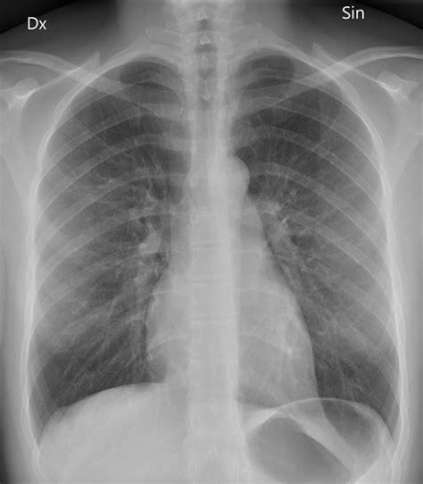 normal chest xray  buyxraysonline