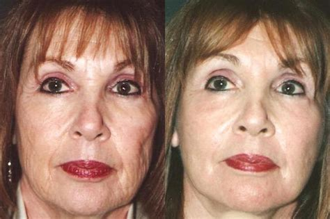 Laser Resurfacing  Miami, Fl  Patient 12543. At And T U Verse Internet Home Loan Estimate. Best Project Managment Software. Data Warehouse Standards Cma Exam Prep Course. Does Insurance Cover Lap Band Surgery. No Interest Balance Transfer Cards. Email Marketing Wordpress Pc Backup Solutions. John Garvey Catholic University. Rehabilitation Centers For Physical Therapy