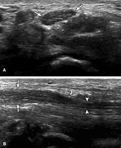 High Resolution Ultrasonography For Peripheral Nerve