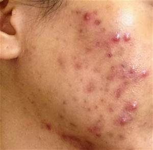 Pimples Archives - Lightskincure