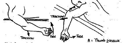 Elbow dislocation - OrthopaedicsOne Clerkship ...