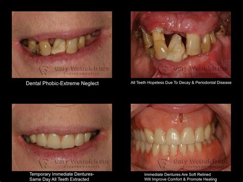 dentures implant supported dentures wellesley ma gary