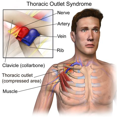 Anatomy Of The Thoracic Outlet And The Thoracic Outlet