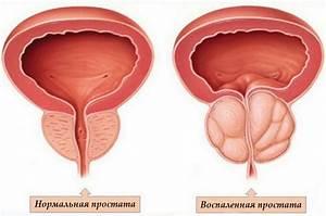 Вильпрафен от простатита отзывы