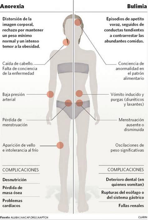 cuadros sinopticos sobre bulimia cuadro comparativo