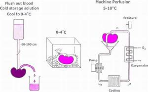 Schematic Representation Of Static Cold Storage And