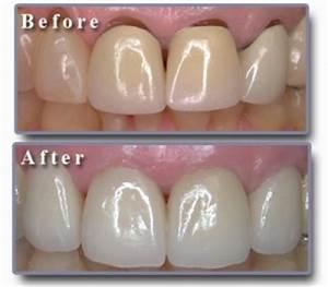 Diamond Dental of Salinas - Zirconia Crown