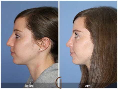 Before & After Rhinoplasty 77  Newport Beach Nose Job. Body Slimming Treatment Franklin Auto Service. Patent Law Firms Boston Seminary Schools In Nc. Ultrasense Nitrile Gloves Security Company Nj. William Allen White School Of Journalism. Term Life Insurance Free Quotes. Invisalign Before After Medical Detox Seattle. Christmas Cards Custom Final Expense Planning. Online Shipping Service Price For Cell Phones