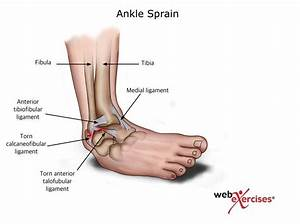 Understanding And Preventing Ankle Sprains Through
