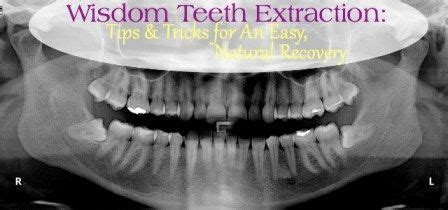 For a normal tooth extraction, it take 3 to 4 days to be back in a normal life. Ad Hoc Wisdom Teeth Before And After #oralhealth # ...