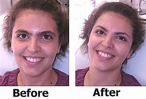 Before/After Photos: How To Clean Up Your Brows For Spring ...