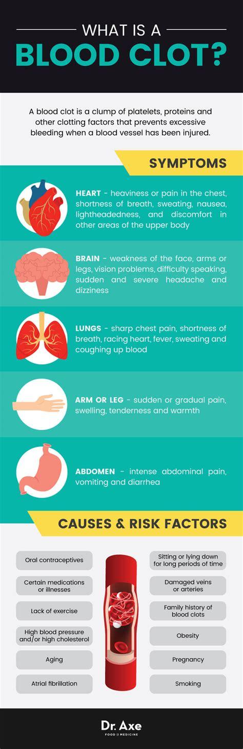 Blood Clots Causes & Symptoms + 8 Natural Remedies