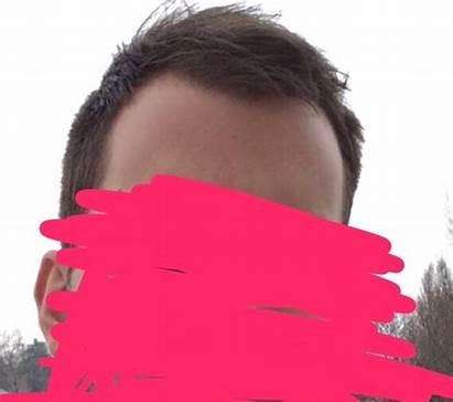 Hairline Maturing