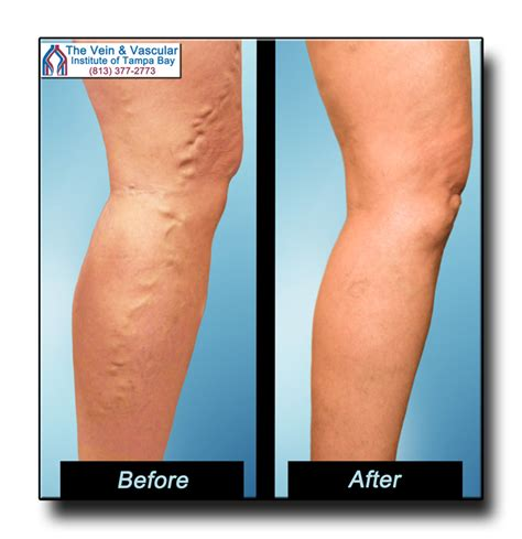 Varicose Veins Treatment Tampa Patient Review Of Dr Kerr. Create Newsletter Online Free. Resource Allocation In Cloud Computing. Chicagoland Ford Dealers Dodge Dealer Detroit. Oversize Load Trucking Companies. Alarm Companies Little Rock Ar. Master Of Accounting Programs. At&t Phone Internet Plans Drain Cleaning Cost. Where Can I Create A Free Website