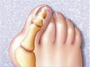 От боли в суставах солевые повязки