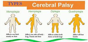 Cerebral Pols Y Pictures to Pin on Pinterest - PinsDaddy