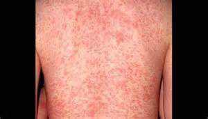 How to Identify Scabies Rash