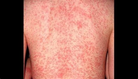 identify  scabies rash   rid  scabies