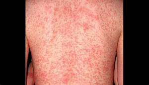 scabies rash images | Images HD Download