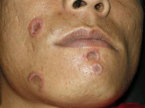 Hiv Rashes On Face Skin Image
