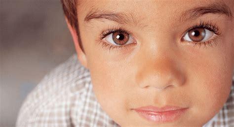 What Is A Lazy Eye كسل العين الوظيفي أسبابه وطرق تشخيصه وعلاجه