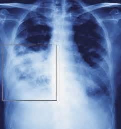 Pneumonia – Types, Causes, Symptoms, Diagnosis and Treatment ... Pneumonia