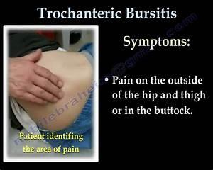 Trochanteric Bursitis   Hip Bursitis- Everything You Need To Know - Dr  Nabil Ebraheim