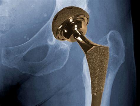 Hip replacement - Image - Digital Journal