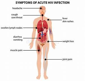 Diagram Showing Symptoms Of Acute Hiv Infection Stock