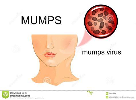 Mumps Virus Structure Royalty-Free Illustration ...