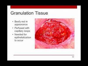 Epithelialization And Granulation Tissue - Image Mag