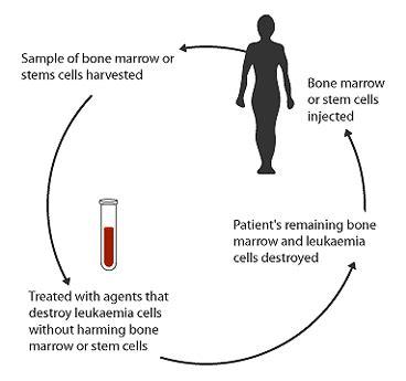 leukaemia meddic