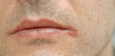 mundwinkelrhagaden  bringt sie zum heilen