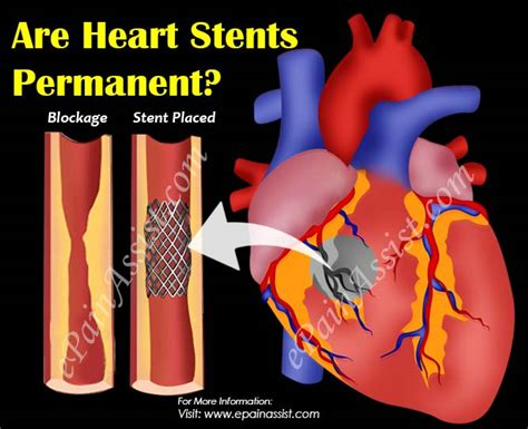 Are Heart Stents Permanent