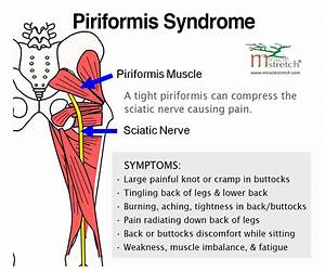 Learn The Symptoms Of Piriformis Syndrome  Get Relief With