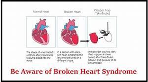 Be Aware of Bro... Broken Heart Syndrome